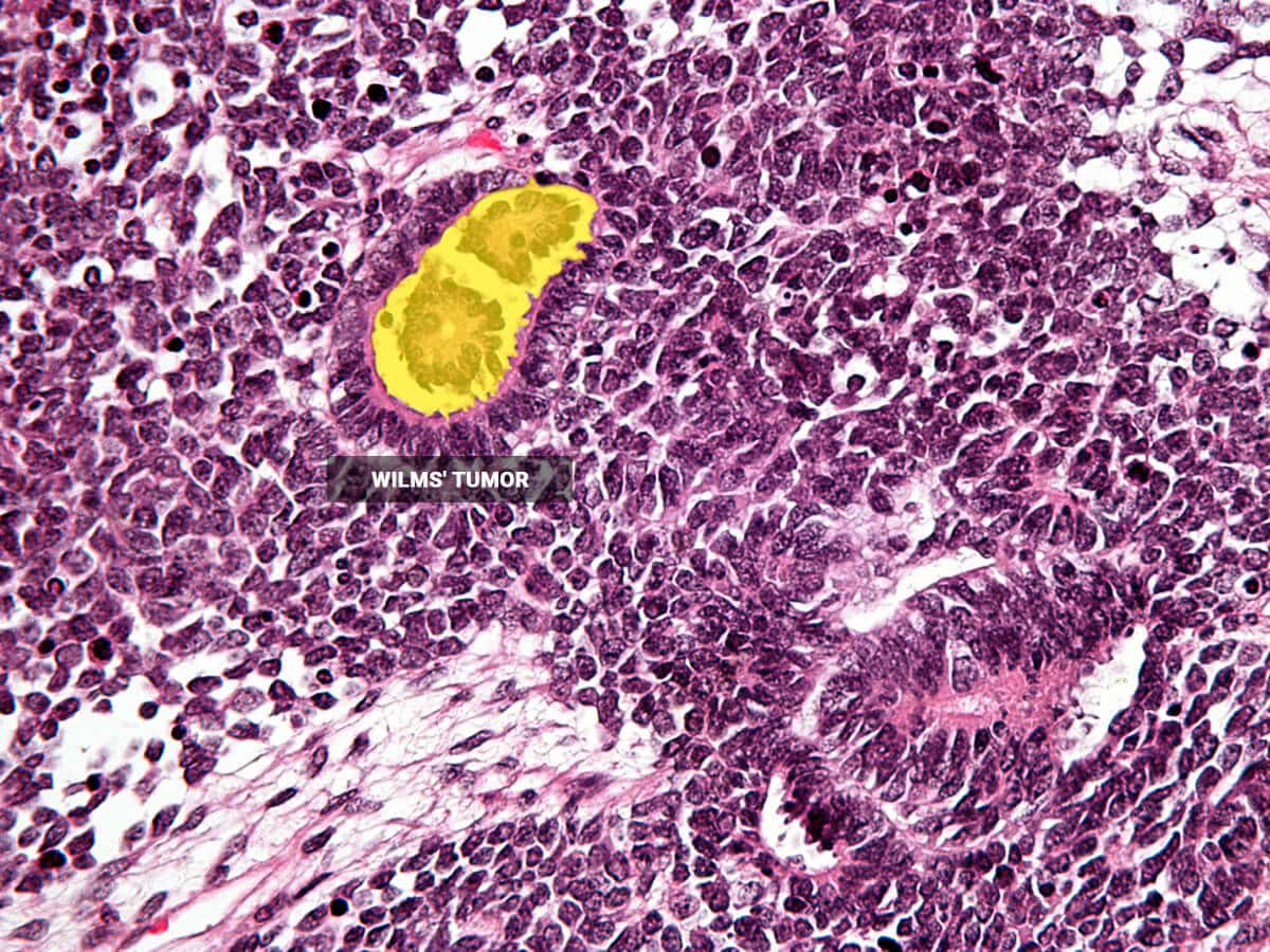 Detect anomalies in tissues