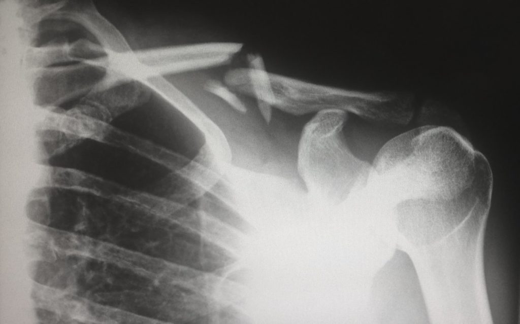 Patient X Ray - Image regognition using AI - Uses in Medicine